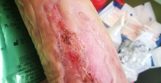 Leczenie ran przewlekłych oraz trudno gojących się